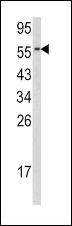 Cdc23 Antibody (PA5-13563) in Western Blot