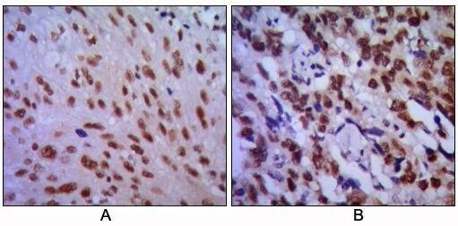 CDK1 Antibody (MA5-15629) in Immunohistochemistry