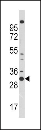 CDK1 Antibody (PA5-11583) in Western Blot
