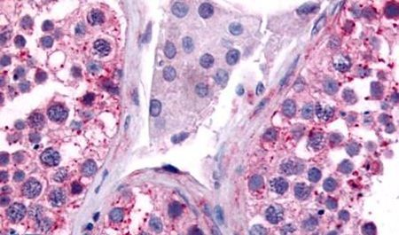 Cdc7 Antibody (PA5-33415) in Immunohistochemistry (Paraffin)