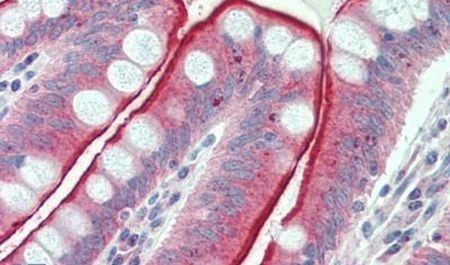 CDHR5 Antibody (PA5-32704)