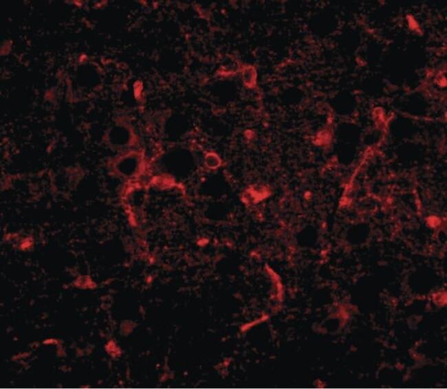 CDIP1 Antibody (PA5-20692)