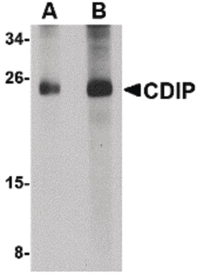 CDIP1 Antibody (PA5-20692) in Western Blot