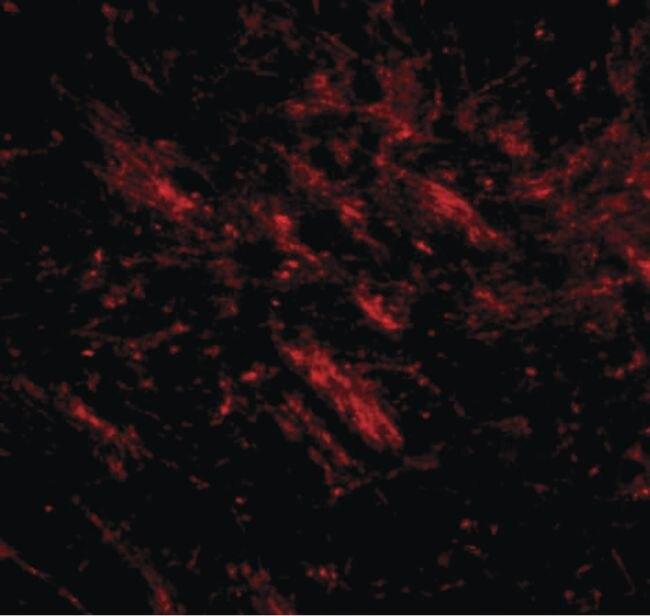 CDIP1 Antibody (PA5-20697)