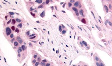 CDK12 Antibody (PA5-33418)