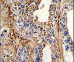 CDK4 Antibody (PA5-14445) in Immunohistochemistry