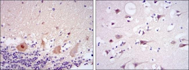 CDK5 Antibody (MA5-17053) in Immunohistochemistry