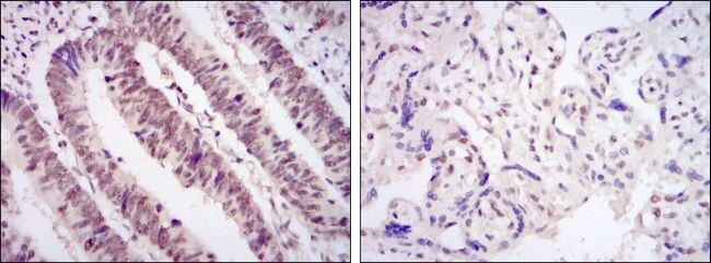 CDK9 Antibody (MA5-15849) in Immunohistochemistry