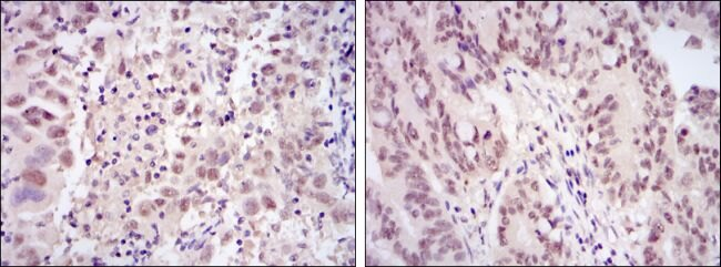 CDK9 Antibody (MA5-15850)