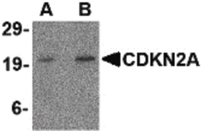 p19ARF Antibody (PA5-20379) in Western Blot