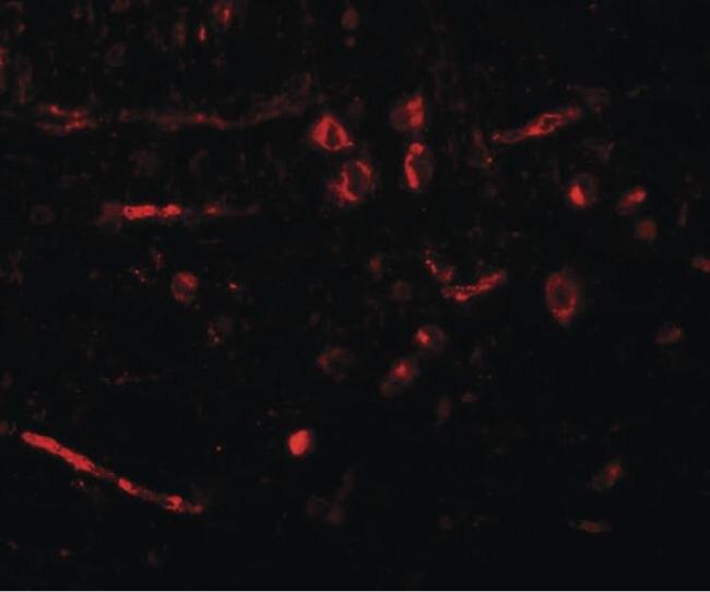 CDX2 Antibody (PA5-20891) in Immunofluorescence