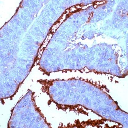 CEA Antibody (PA5-32342) in Immunohistochemistry