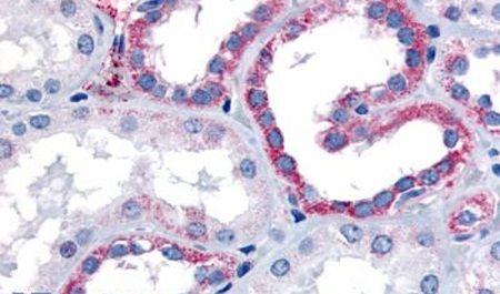 CELSR1 Antibody (PA5-33420) in Immunohistochemistry (Paraffin)