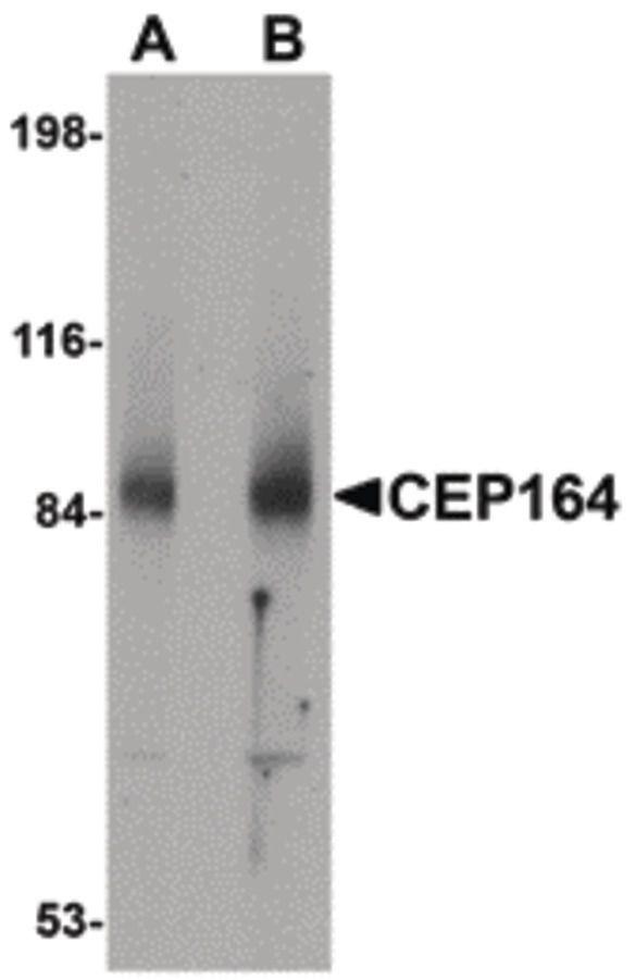 CEP164 Antibody (PA5-20701)