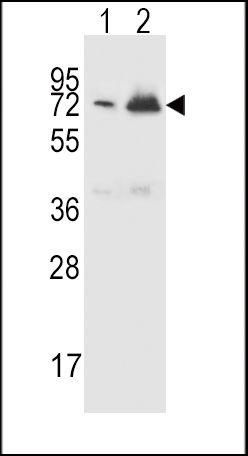 CFHR5 Antibody (PA5-25595) in Western Blot