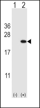 Cofilin Antibody (PA5-24628) in Western Blot