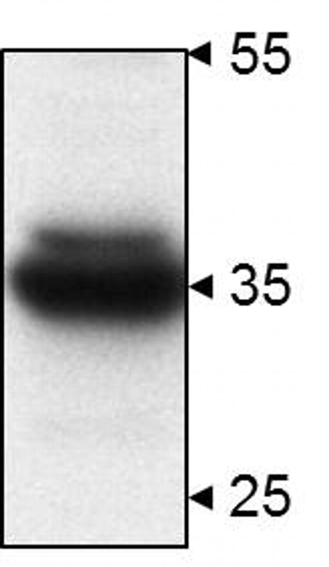 STUB1 Antibody (PA1-015)