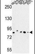 CHPF Antibody (PA5-26056) in Western Blot