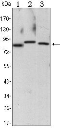 IKK alpha Antibody (MA5-15691) in Western Blot