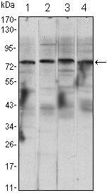 IKK alpha Antibody (MA5-15696) in Western Blot