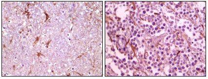 Calmyrin Antibody (MA5-15299) in Immunohistochemistry