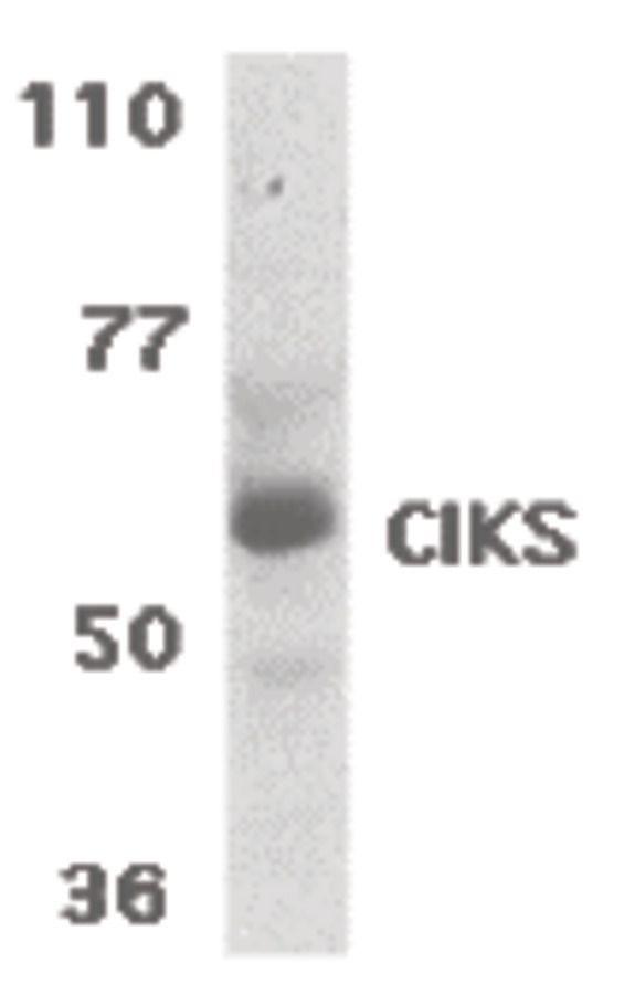 TRAF3IP2 Antibody (PA5-19988) in Western Blot