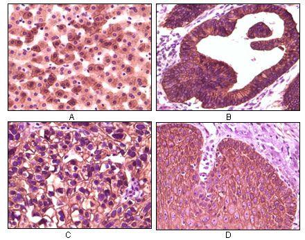 CK1 alpha Antibody (MA5-15300)