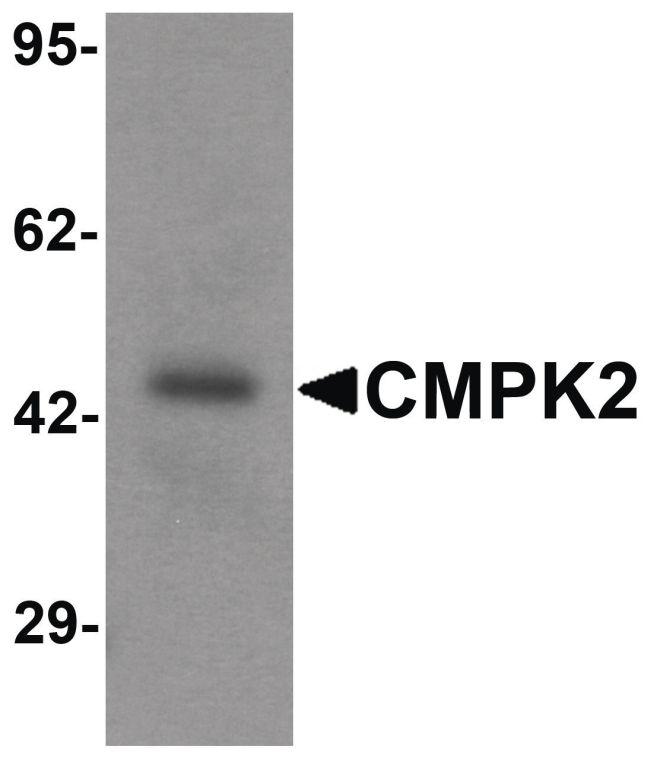 CMPK2 Antibody (PA5-34461) in Western Blot