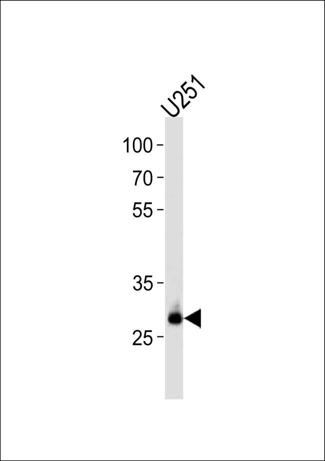 CNOT8 Antibody (PA5-13451) in Western Blot