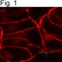Cannabinoid Receptor 1 Antibody (PA1-743) in Immunofluorescence