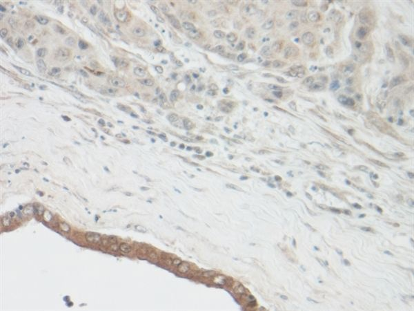 CNTF Antibody (PA1-84969) in Immunohistochemistry (Paraffin)