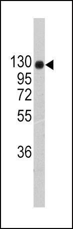 Collagen II Antibody (PA5-11462)