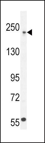 Collagen V Antibody (PA5-23989) in Western Blot