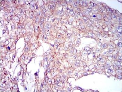 COTL1 Antibody (MA5-17060) in Immunohistochemistry