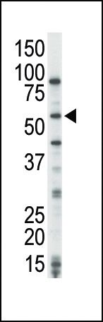 COT Antibody (PA5-15155) in Western Blot