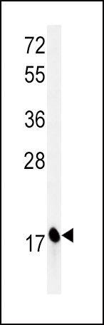 CPLX1 Antibody (PA5-26419) in Western Blot