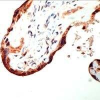 CRF Antibody (PA1-37499)