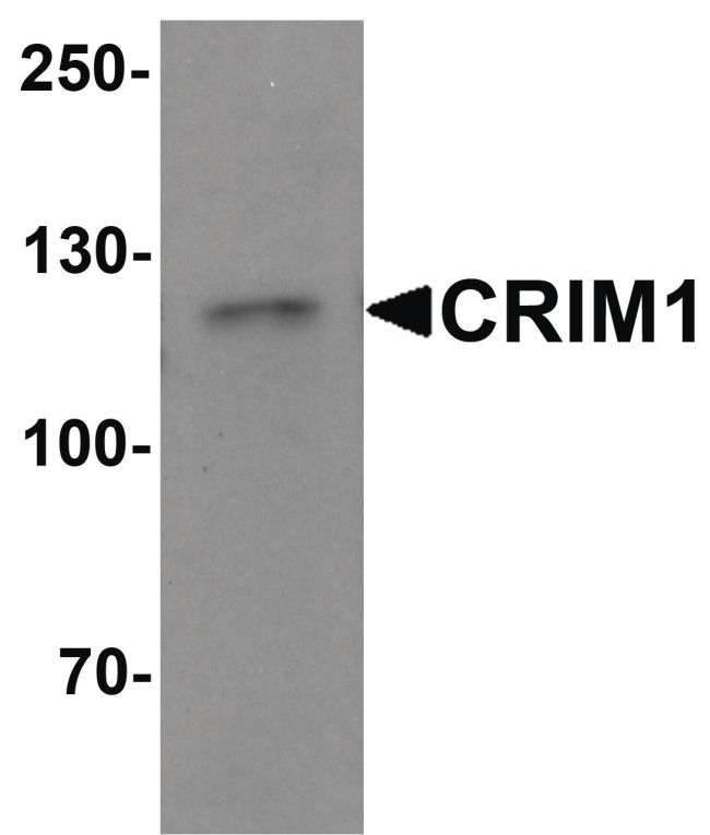 CRIM1 Antibody (PA5-34410) in Western Blot