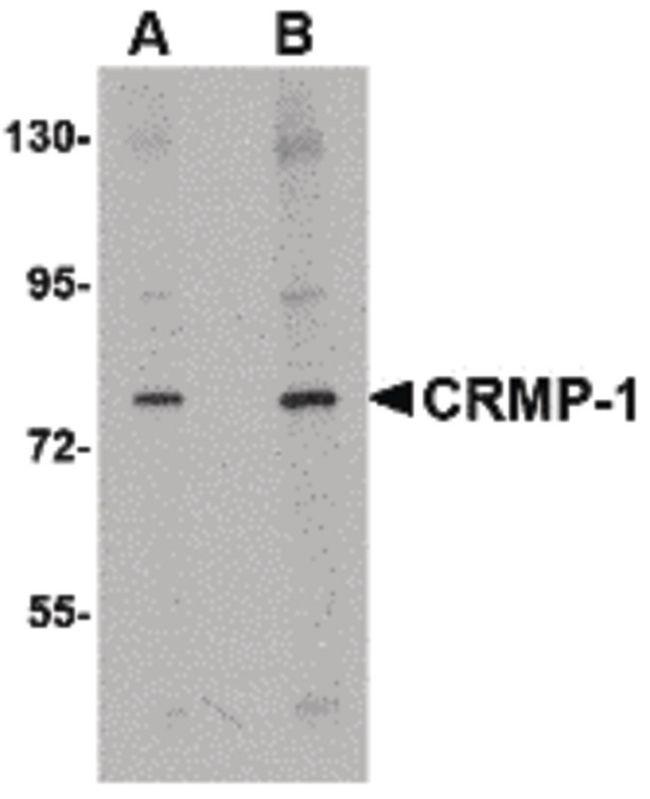 DRP1 Antibody (PA5-20677) in Western Blot