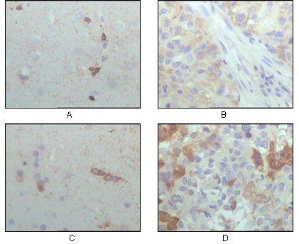 CRYAB Antibody (MA5-15383) in Immunohistochemistry