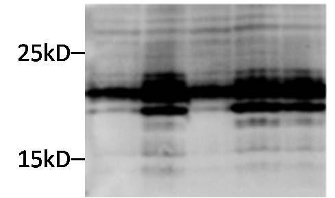 CRYAB Antibody (MA5-15383) in Western Blot