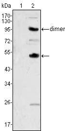 M-CSF Antibody (MA5-15599) in Western Blot