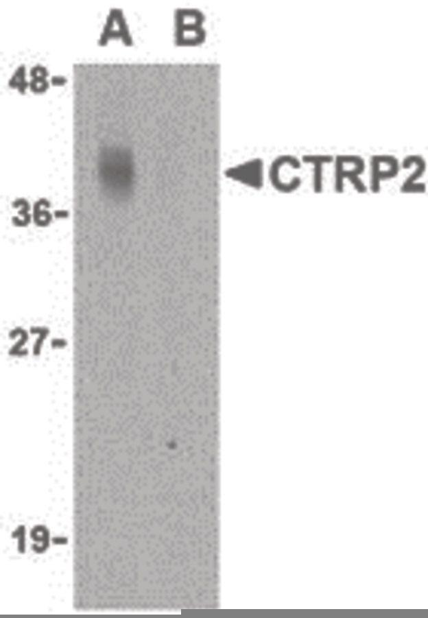 CTRP2 Antibody (PA5-20148) in Western Blot