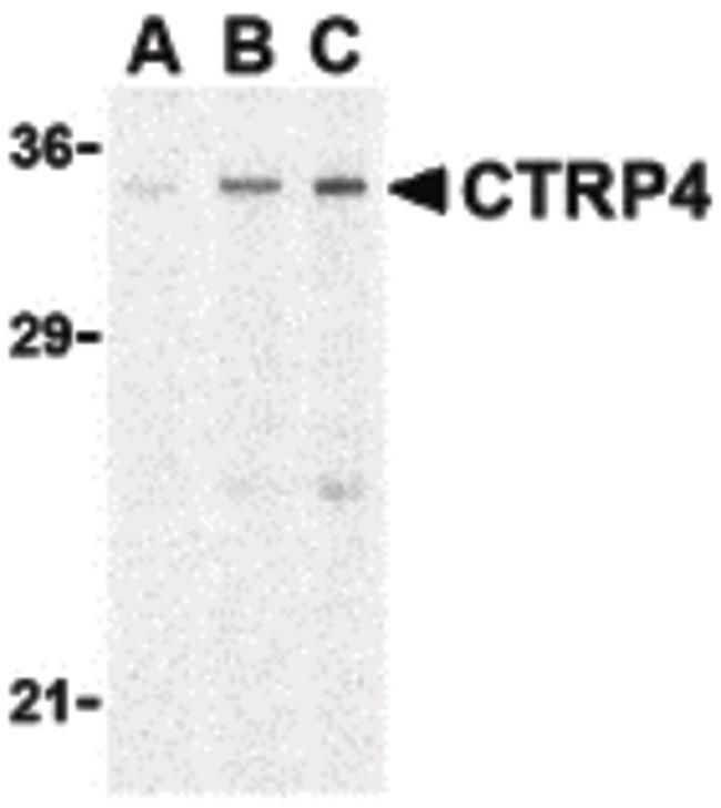 CTRP4 Antibody (PA5-20151) in Western Blot