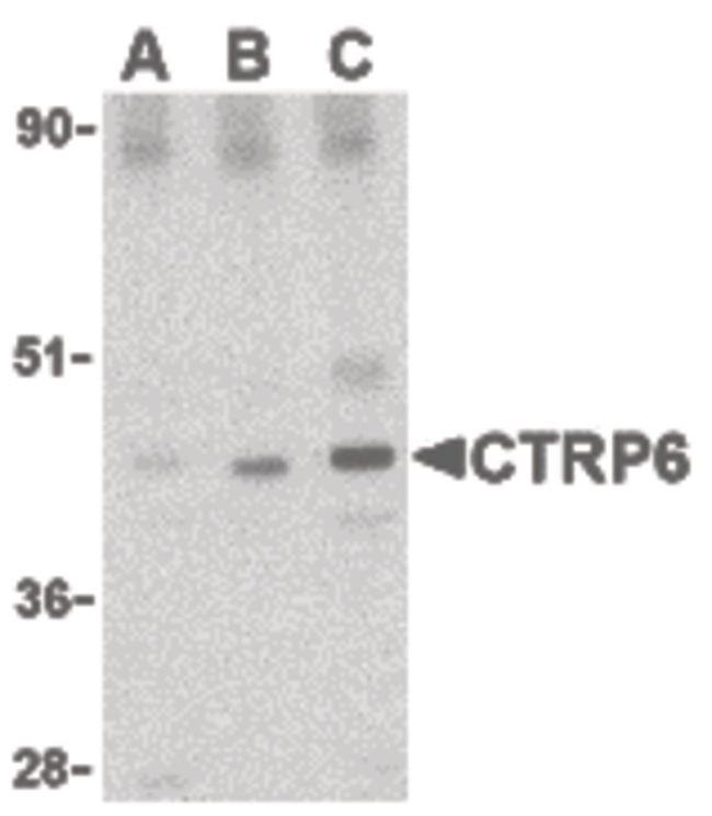 CTRP6 Antibody (PA5-20155) in Western Blot