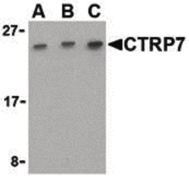 CTRP7 Antibody (PA5-20156) in Western Blot