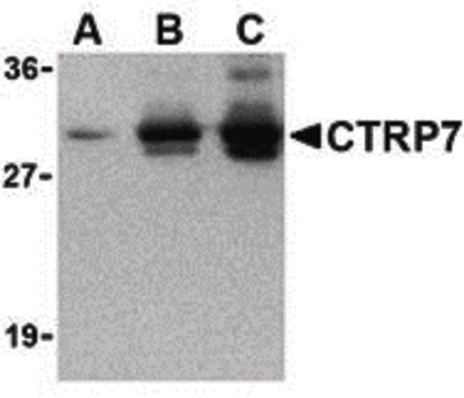 CTRP7 Antibody (PA5-20198) in Western Blot