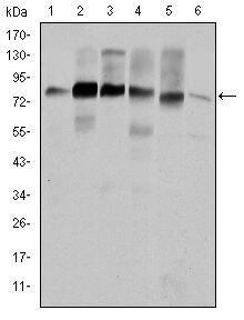 Cortactin Antibody (MA5-15831) in Western Blot