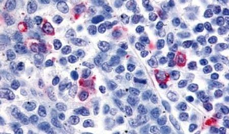 CXCR6 Antibody (PA5-33460) in Immunohistochemistry (Paraffin)