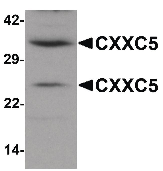 CXXC5 Antibody (PA5-21080) in Western Blot